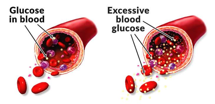 Kebanyakan orang berfikir hanya pesakit kencing bagus memiliki kadar gula yang tinggi da Berhati-Hati Anda Mungkin Tak Sedar Inilah 12 Tanda-Tanda Anda Mengambil Banyak Gula Dalam Sehari