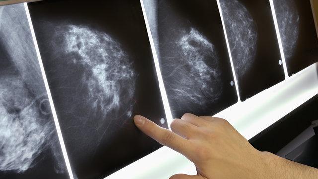 Inilah 5 Jenis Makanan Elak Kanser Payudara Orang Perempuan Kena Amalkan 2