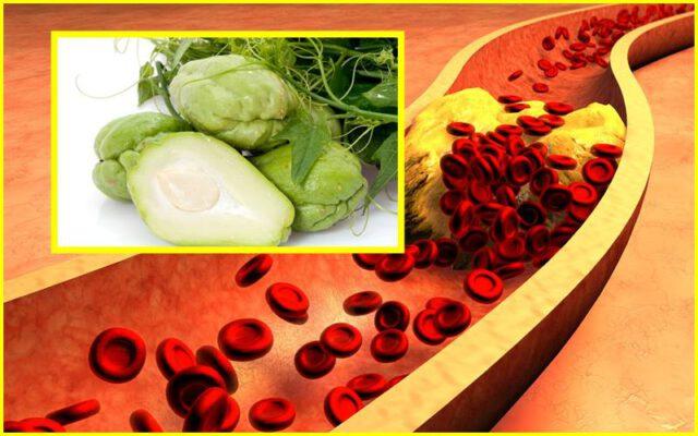 kolesterol jahat