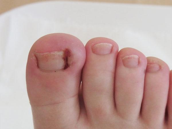 cagu kaki, rawat cagu kaki, punca cagu kaki