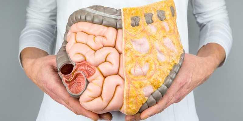 makanan buncitkan perut, minuman buncitkan perut, punca perut buncit, cara elak perut buncit, petua elak perut buncit