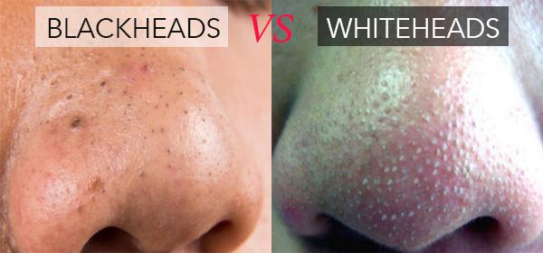 blackhead, whitehead, cara hilangkan blackhat, cara hilangkan whitehead, petua hilangkan whitehead, petua hilangkan blackhead