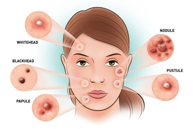 5 jenis jerawat, rawatan jerawat, cegah jerawat, jerawat di muka, jerawat di badan, cara mengatasi jerawat