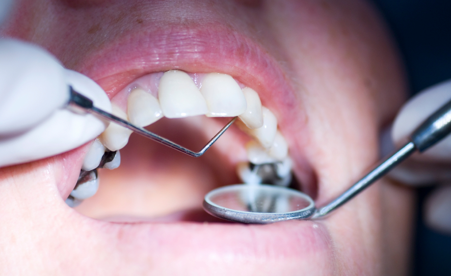 sakit gigi,gigi berlubang,tampalan gigi, tip tampalan gigi, petua tampalan gigi, harga tampal gigi, doktor gigi, klinik doktor gigi