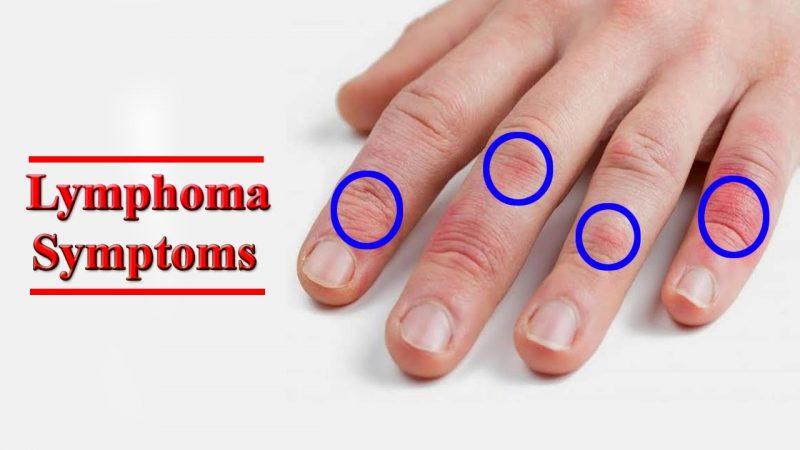 simptom kanser limfoma, Kanser Limfoma, tanda-tanda Kanser Limfoma, rawatan Kanser Limfoma, punca Kanser Limfoma