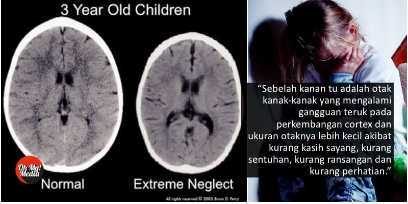 otak anak terabai, jangan abaikan anak, minda anak terabai, masalah mental anak terabai
