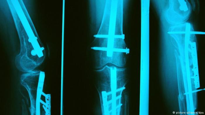 patah tulang, rawatan patang tulang, petua patah tulang, cara rawat tulang patah, petua rawat tulang patah