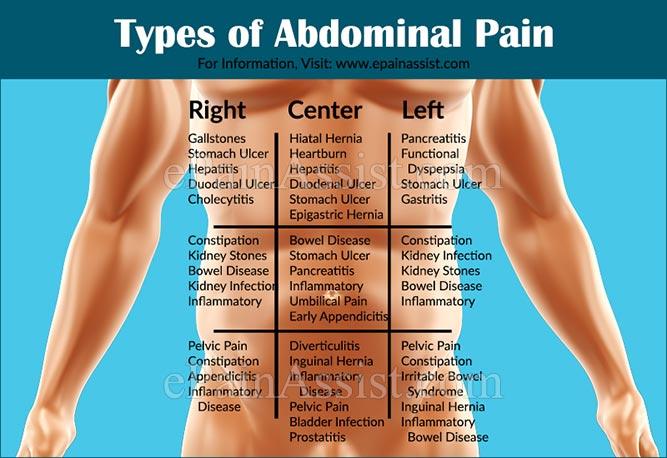 sakit perut, punca sakit perut, cara mengatasi sakit perut, rawatan sakit perut, petua sakit perut, appendix, sembelit, senggugut, kembung, pedih ulu hati