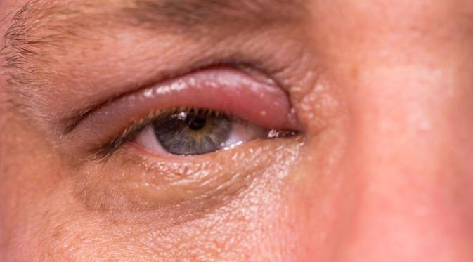 masalah mata, kesihatan mata, mata rosak, kesihatan ganggu penglihatan, masalah penglihatan,