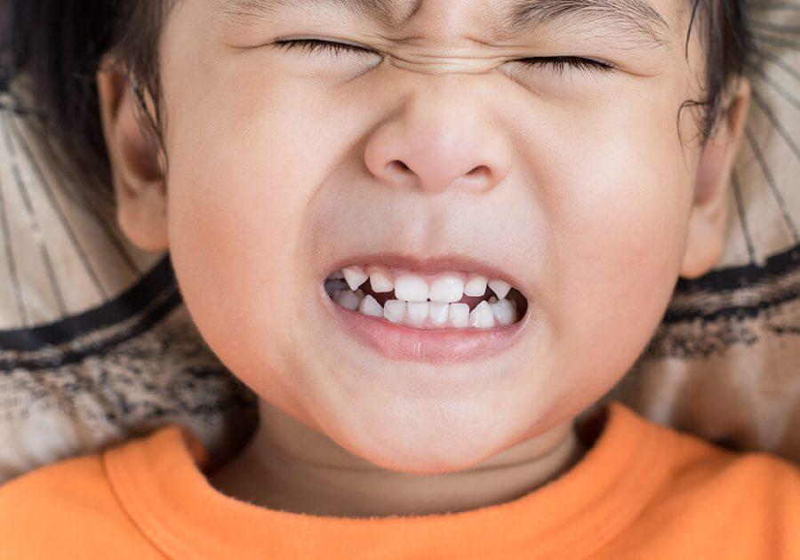 Bruxism, Teeth Grinding, punca teeth grinding, asah gigi, asah gigi masa tidur, kerap asah gigi masa tidur, bruxism semasa tidur, kesan buruk asah gigi