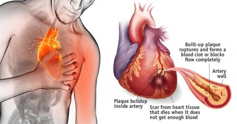 herba untuk kesihatan jantung, amalan pemakanan untuk jantung, penjagaan jantung, penjagaan makanan untuk jantung, jantung yang sihat, diet untuk jantung