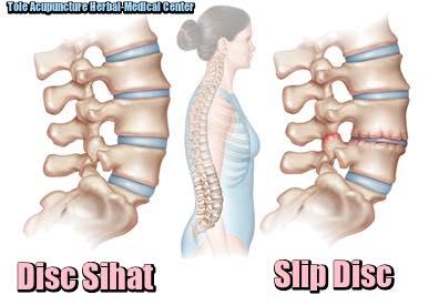 slip disc, punca slipdisc, tanda-tanda slipdisc, rawatan slipdisc, bahaya slipdisc, mencegah slipdisc