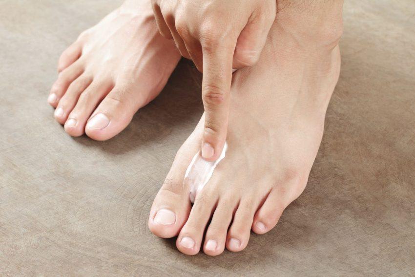 gatal celah kaki, kaki kena ulat air, kaki rosak kena air, kaki berbau, kaki gatal, celah jari kaki gatal, angkara ulat air
