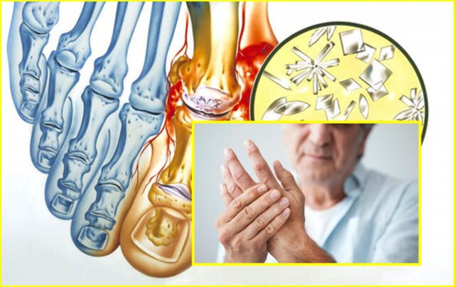 serangan gout
