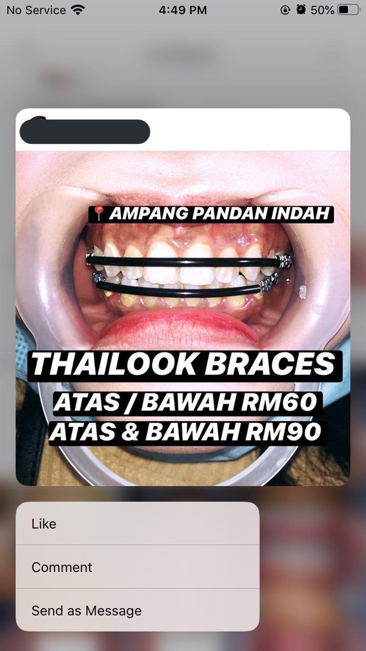 Dentist Palsu