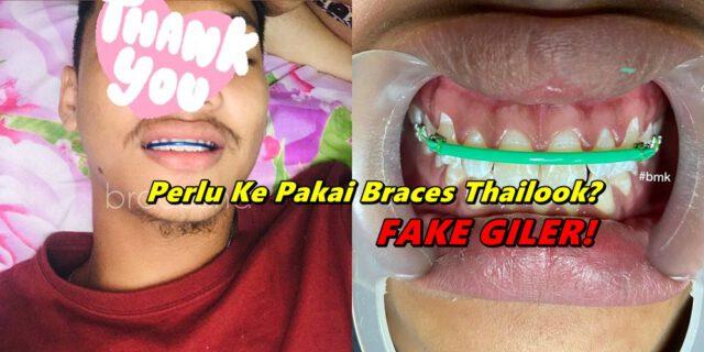 Dentist Palsu Makin Menjadi-Jadi, 'Thailook Braces' Trend Remaja Terkini