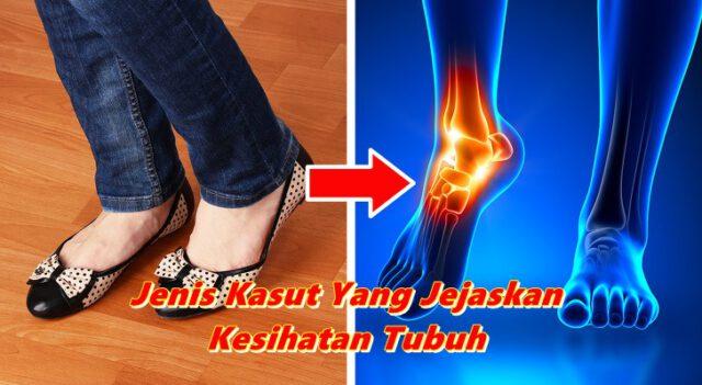 6 Jenis Kasut Yang Jejaskan Kesihatan Tubuh, Kasut Flat Pun Bahaya!