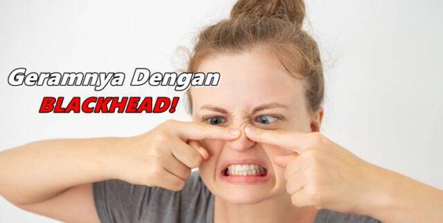 Inilah 5 Cara Berkesan Hilangkan Blackhead, Jangan Picit Sendiri Di Rumah!