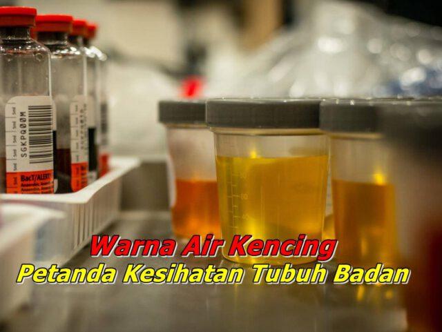 Kenali Warna Air Kencing Anda Untuk Tentukan Tahap Kesihatan Tubuh Badan!